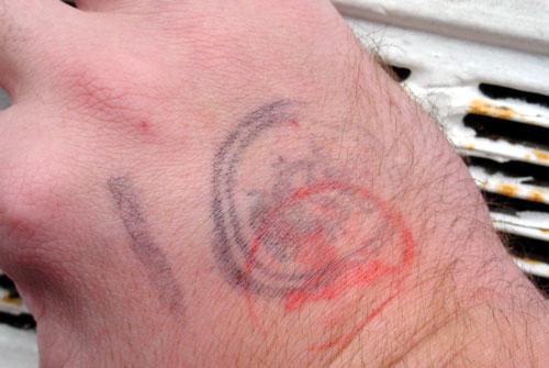 Club Scars